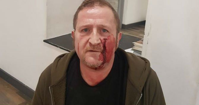 Man attacked by youths with hammers when he turns up for Grindr date